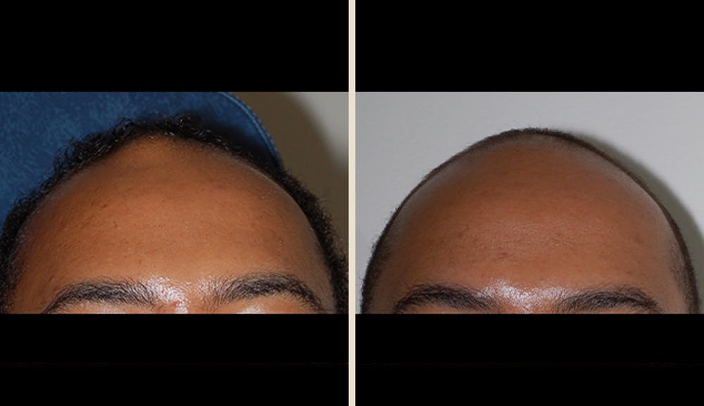 Lipoma Removal Gallery - Patient 5890667 - Image 1
