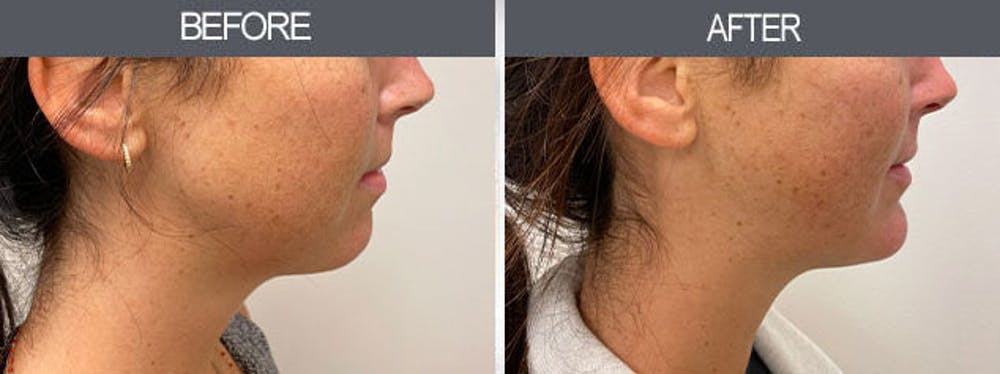 Chin Implants Gallery - Patient 7594791 - Image 1