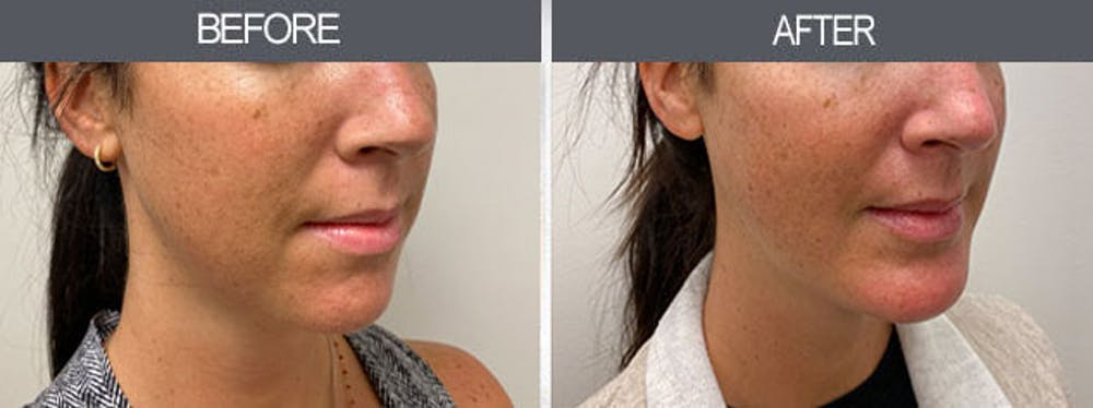 Chin Implants Gallery - Patient 7594791 - Image 2