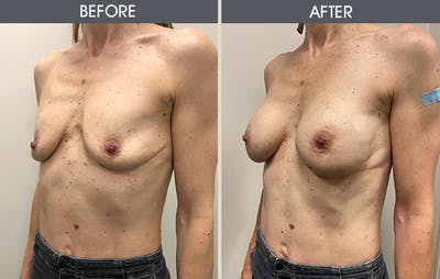 Breast Augmentation Gallery - Patient 8285474 - Image 2