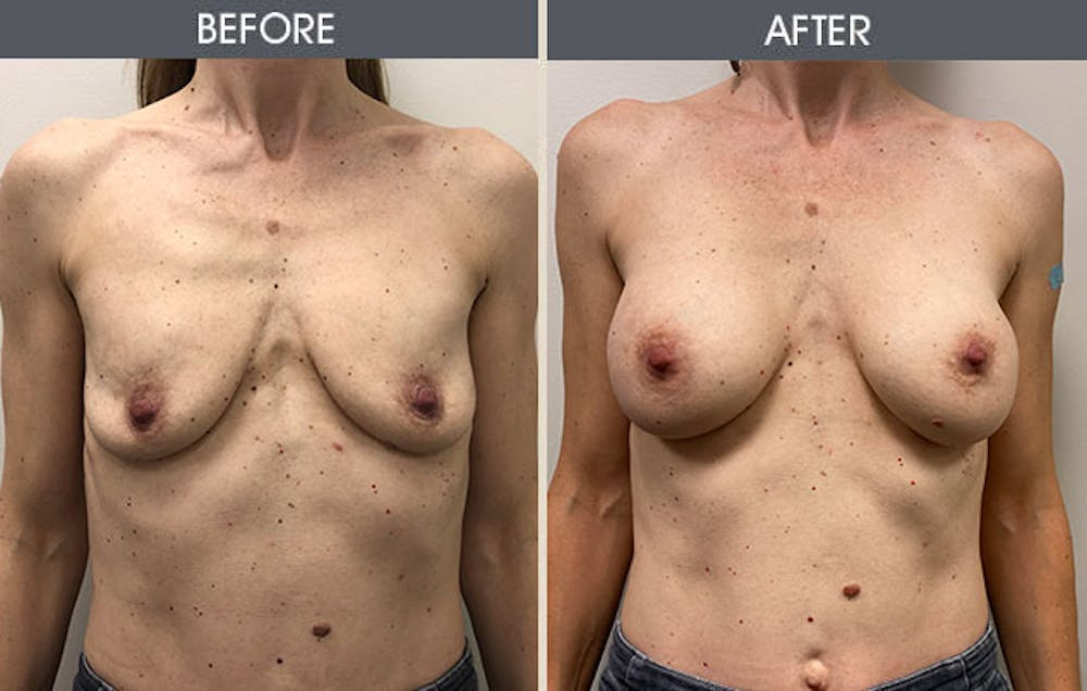 Breast Augmentation Gallery - Patient 8285474 - Image 1