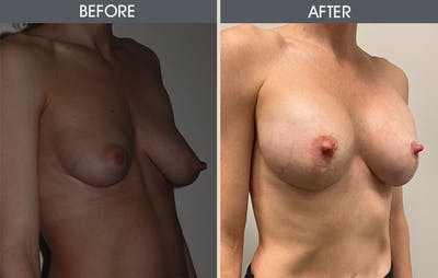 Breast Augmentation Gallery - Patient 8285486 - Image 2