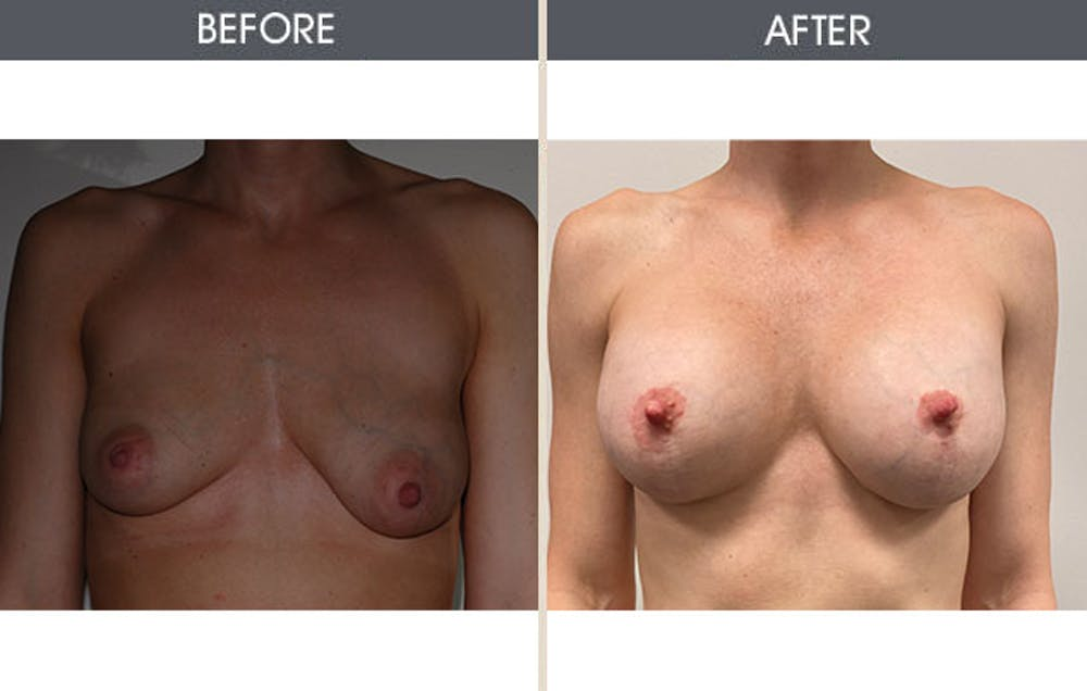 Breast Augmentation Gallery - Patient 8285486 - Image 1