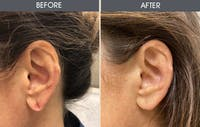 Earlobe Repair Gallery - Patient 5890665 - Image 1