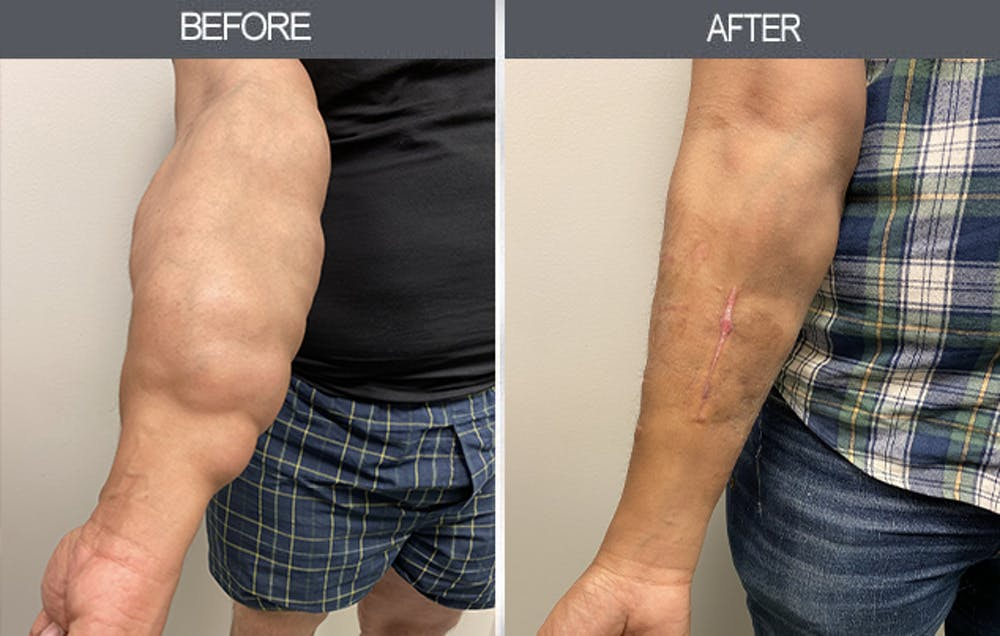 Lipoma Removal Gallery - Patient 11260028 - Image 1