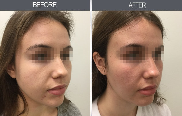 Buccal Fat Removal Gallery - Patient 11260040 - Image 1