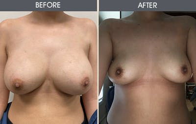 Breast Implant Removal Gallery - Patient 5890664 - Image 1