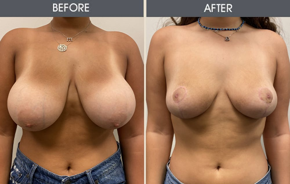 Breast Reduction Gallery - Patient 12607034 - Image 1