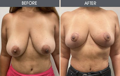 Breast Reduction Gallery - Patient 14391049 - Image 1