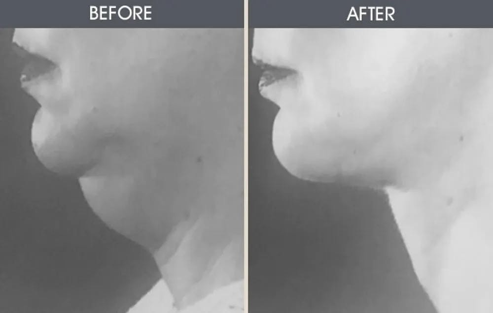 Submental Liposuction Gallery - Patient 22112625 - Image 1