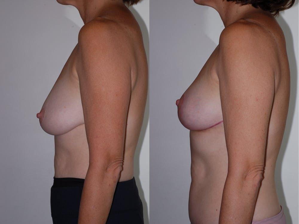 Breast Lift Gallery - Patient 2207169 - Image 2