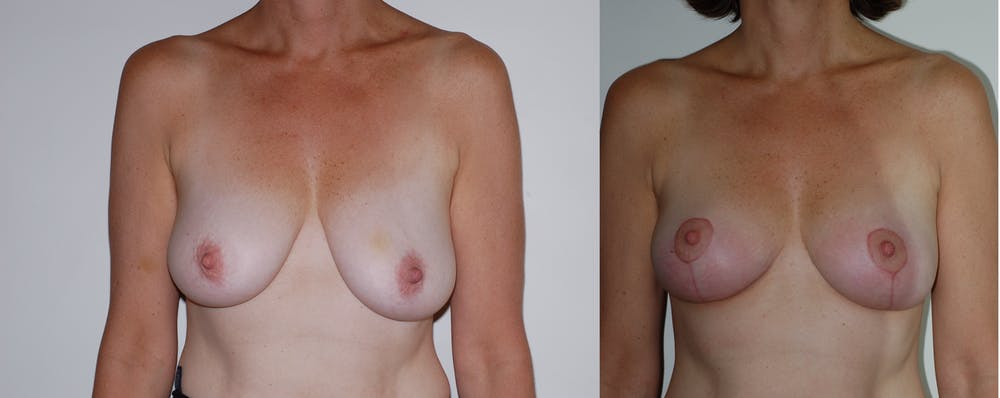 Breast Lift Gallery - Patient 2207169 - Image 3