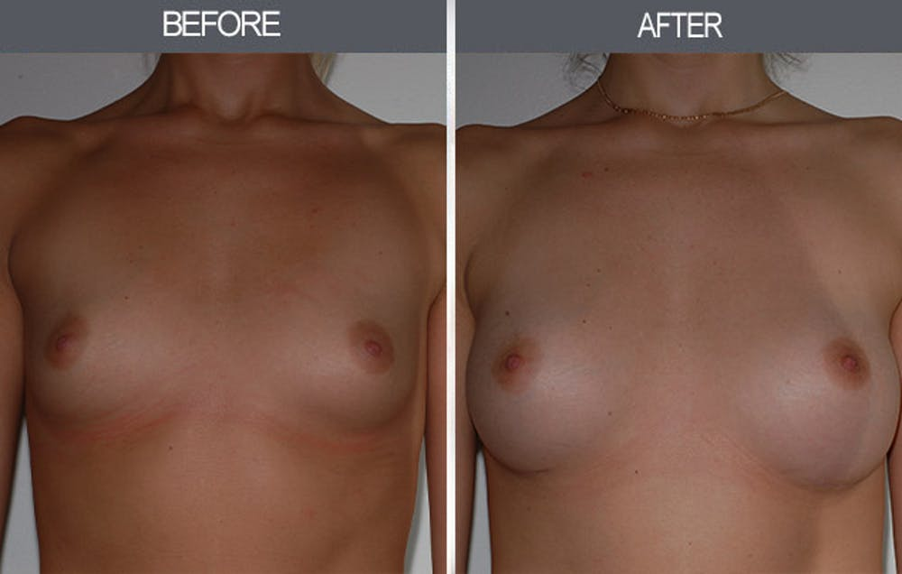 Breast Augmentation Gallery - Patient 22935177 - Image 1