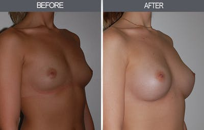 Breast Augmentation Gallery - Patient 22935177 - Image 2