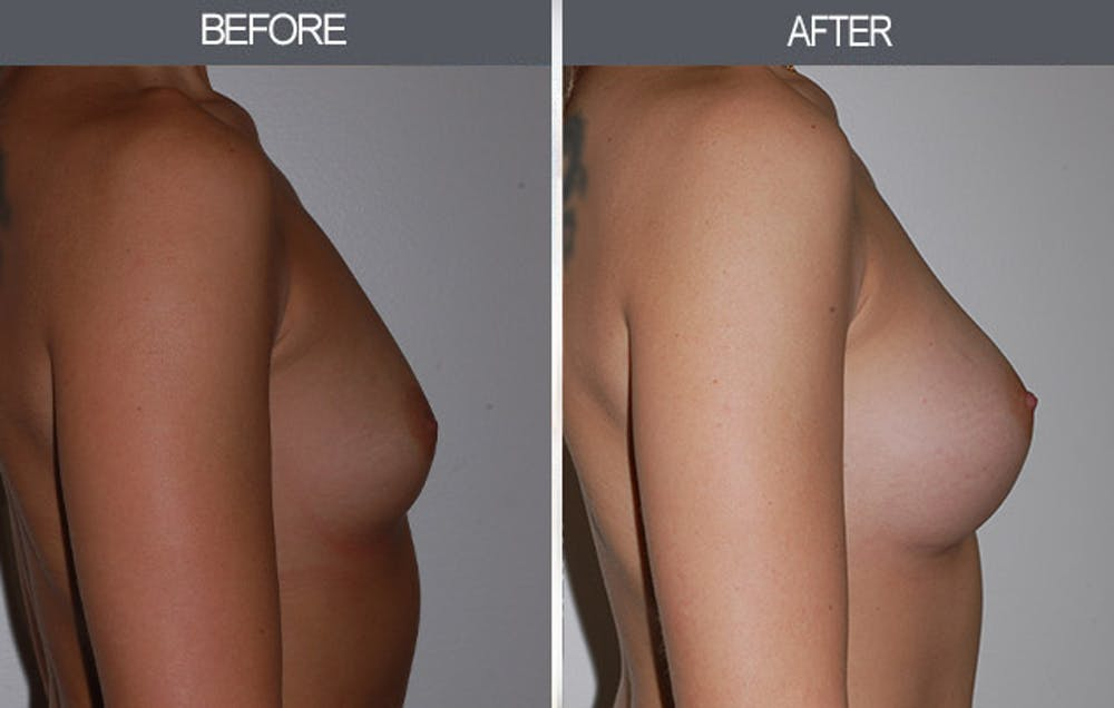 Breast Augmentation Gallery - Patient 22935177 - Image 3
