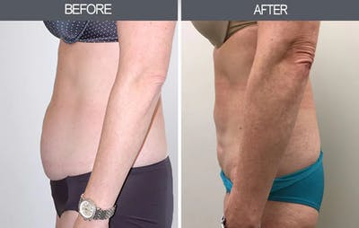 Liposuction Gallery - Patient 4448024 - Image 2