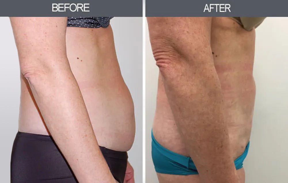 Liposuction Gallery - Patient 4448024 - Image 1