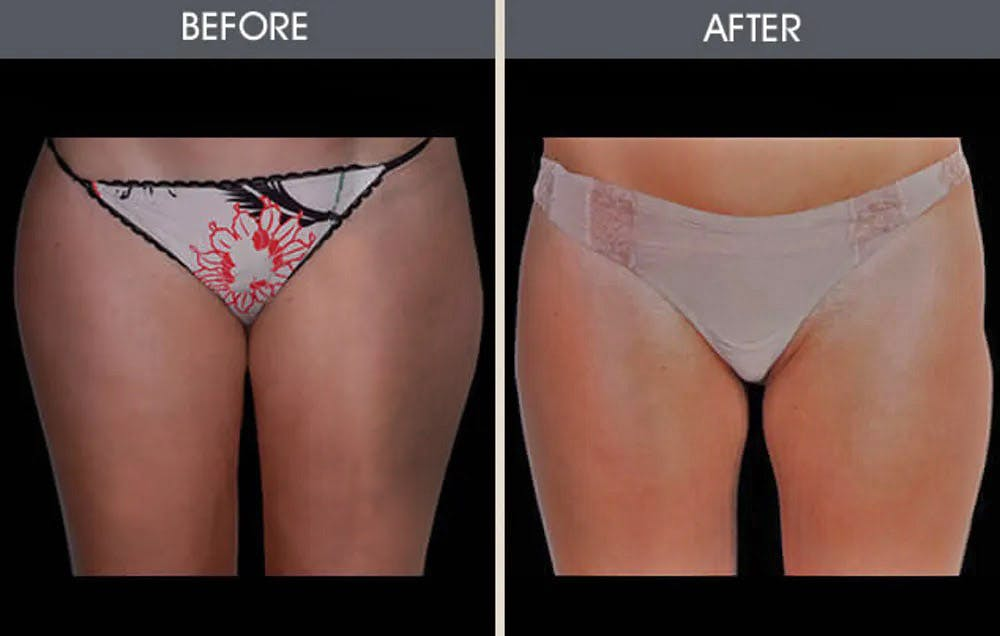Liposuction Gallery - Patient 4448025 - Image 1