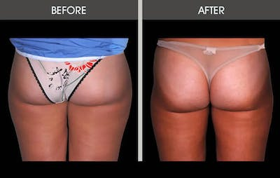 Liposuction Gallery - Patient 4448025 - Image 2