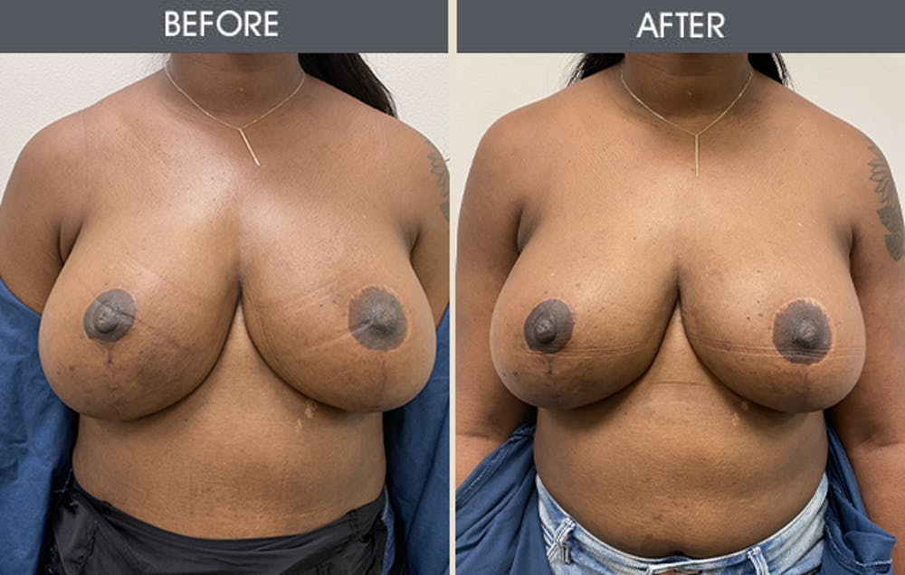 Breast Implant Removal Gallery - Patient 26832073 - Image 1