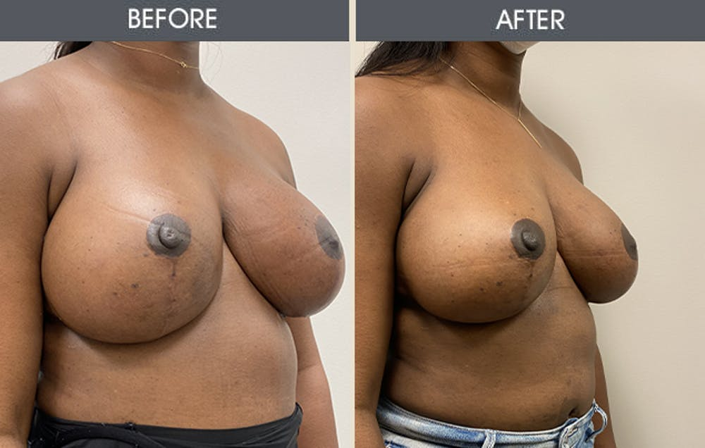 Breast Implant Removal Gallery - Patient 26832073 - Image 2