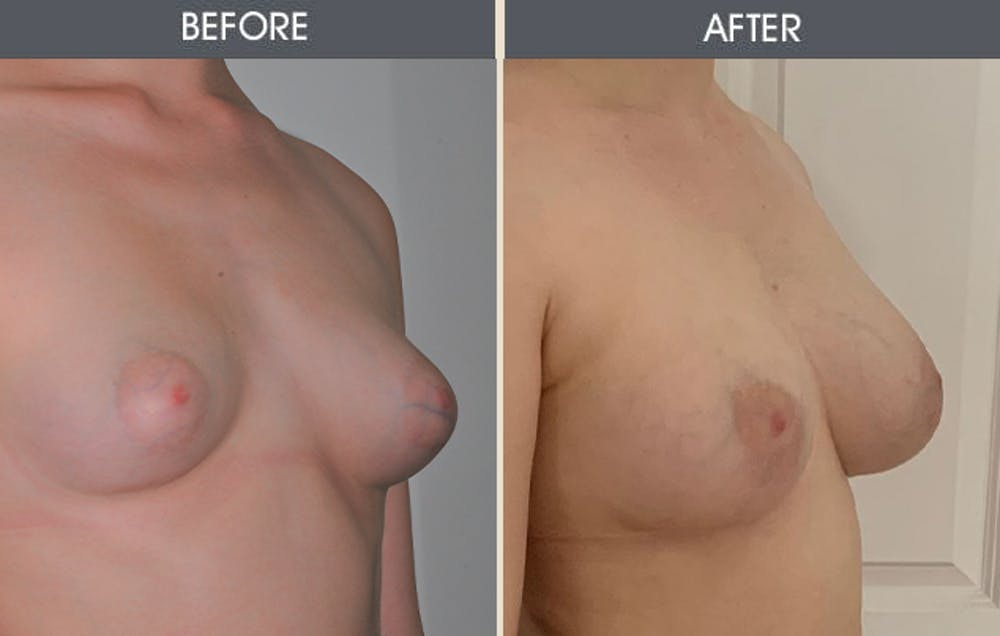 Breast Augmentation Gallery - Patient 26833681 - Image 1