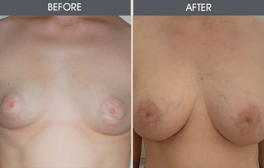 Breast Augmentation Gallery - Patient 26833681 - Image 2