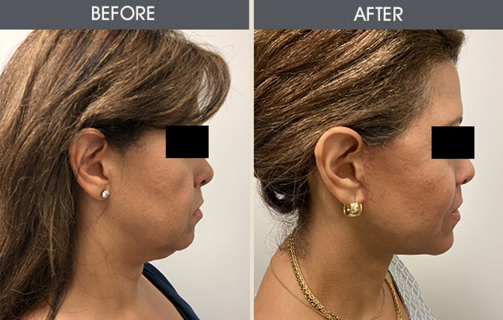 Submental Liposuction Gallery - Patient 45900401 - Image 1