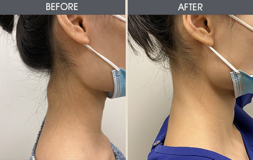 Lipoma Removal Gallery - Patient 45900892 - Image 1