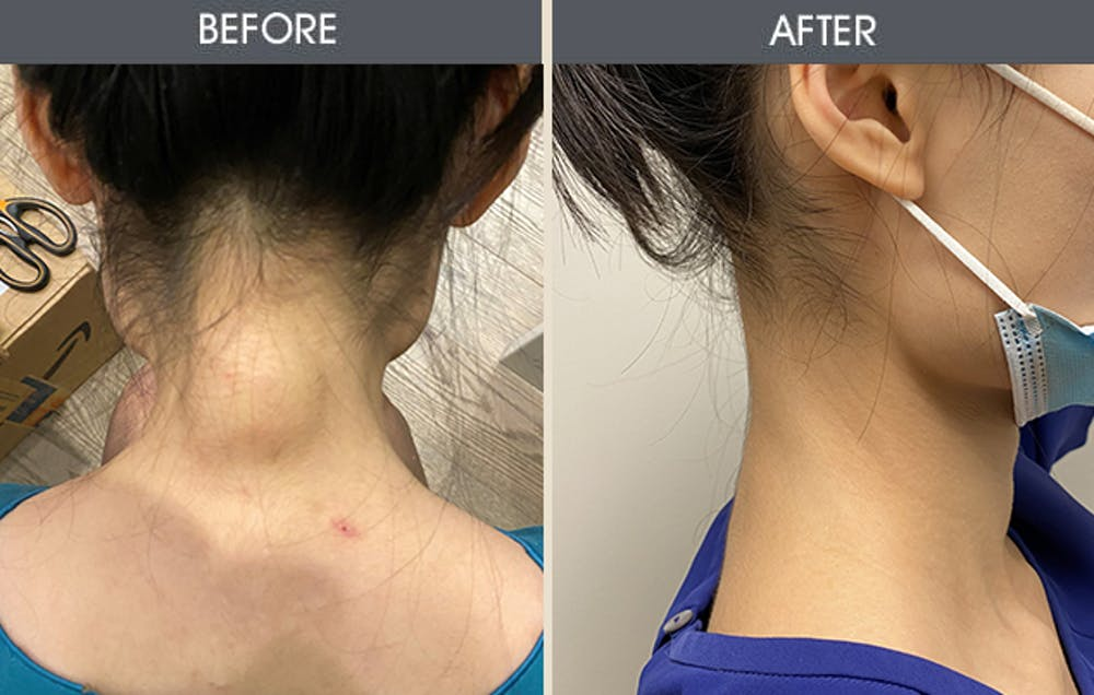 Lipoma Removal Gallery - Patient 45900892 - Image 2