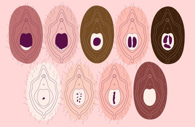 image of 10 vulvas each showing a hymen in different state
