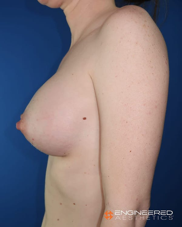 Breast Augmentation  Gallery - Patient 2772419 - Image 4