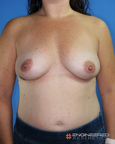 Breast Augmentation  Gallery - Patient 2772420 - Image 1