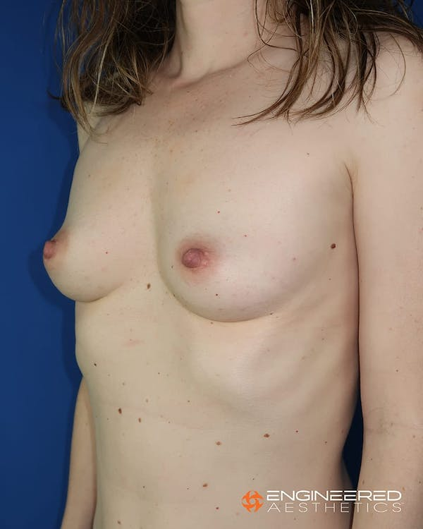 Breast Augmentation  Gallery - Patient 2772419 - Image 5