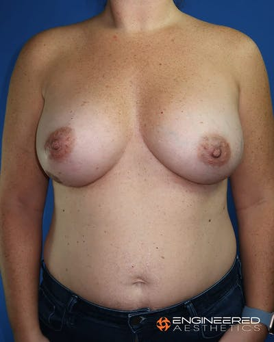 Breast Augmentation  Gallery - Patient 2772420 - Image 2