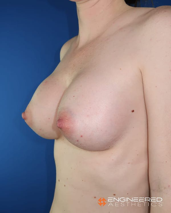 Breast Augmentation  Gallery - Patient 2772419 - Image 6