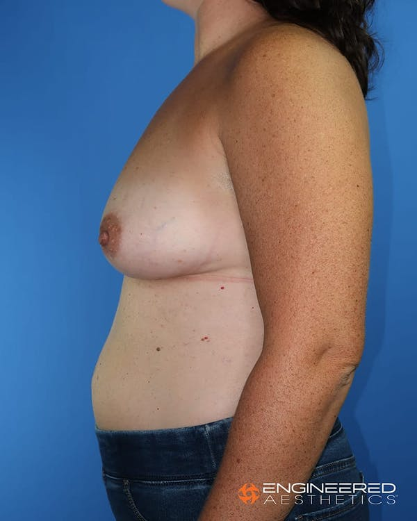 Breast Augmentation  Gallery - Patient 2772420 - Image 3