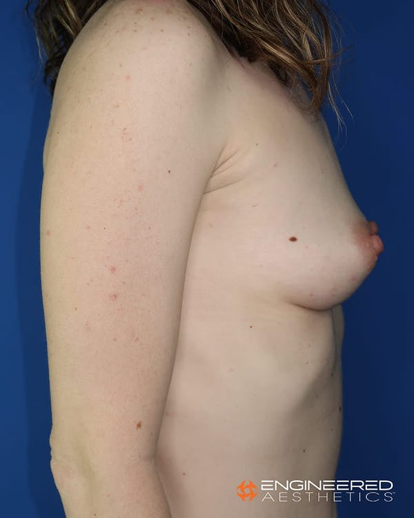 Breast Augmentation  Gallery - Patient 2772419 - Image 9