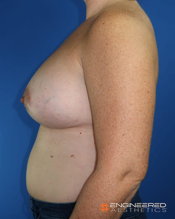 Breast Augmentation  Gallery - Patient 2772420 - Image 4