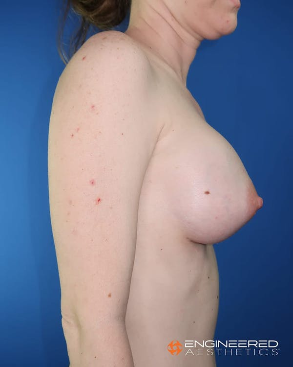 Breast Augmentation  Gallery - Patient 2772419 - Image 10