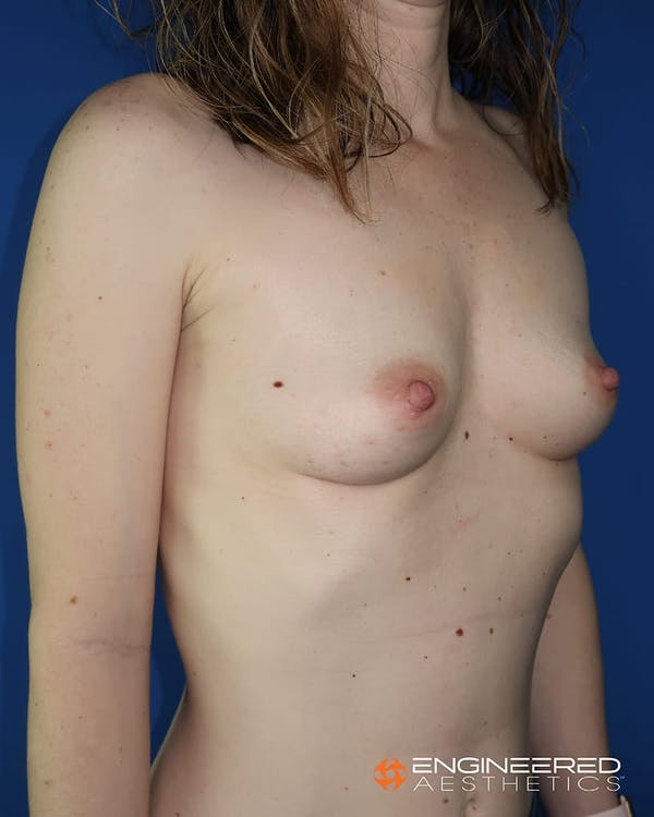 Breast Augmentation  Gallery - Patient 2772419 - Image 7
