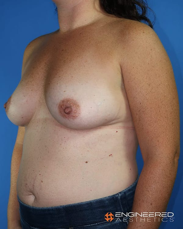 Breast Augmentation  Gallery - Patient 2772420 - Image 5