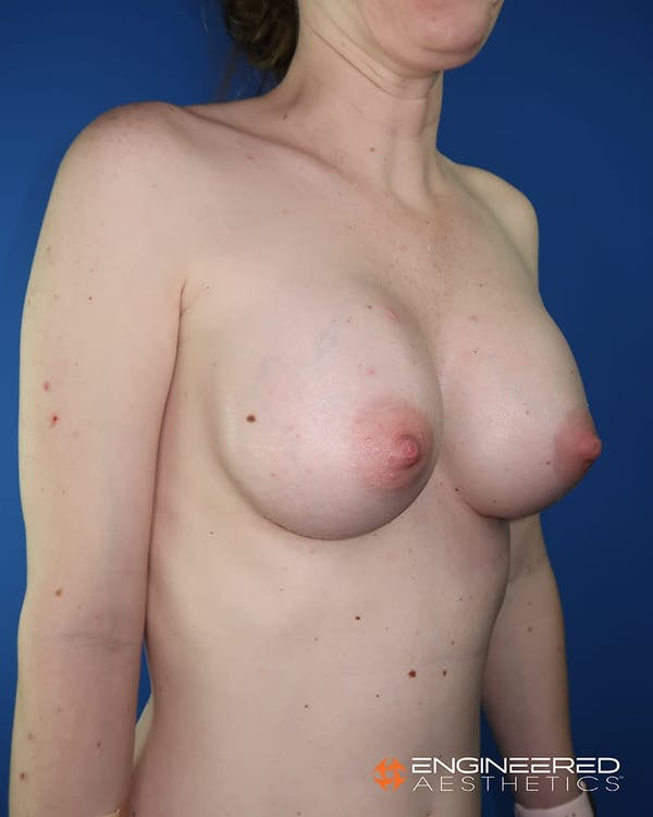 Breast Augmentation  Gallery - Patient 2772419 - Image 8