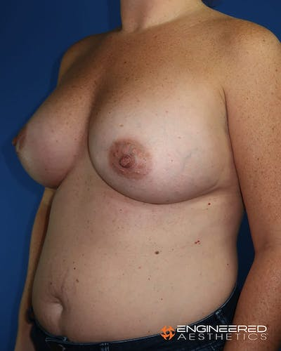 Breast Augmentation  Gallery - Patient 2772420 - Image 6