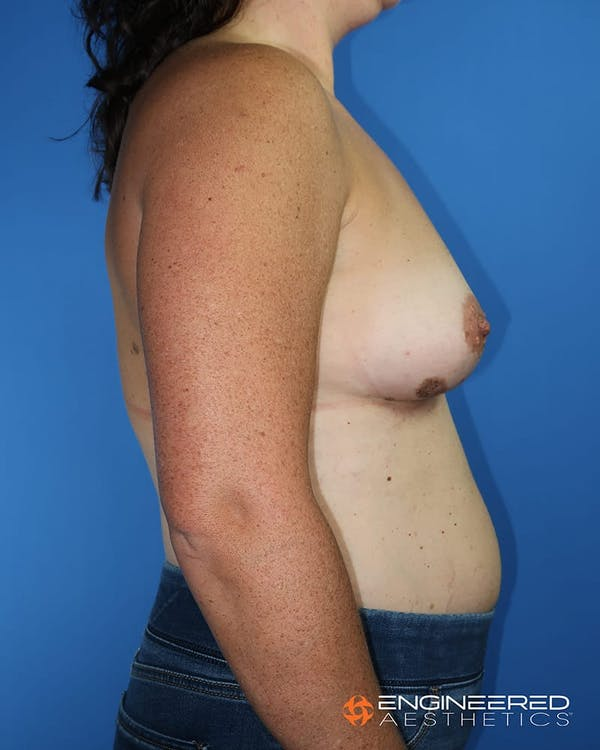Breast Augmentation  Gallery - Patient 2772420 - Image 9