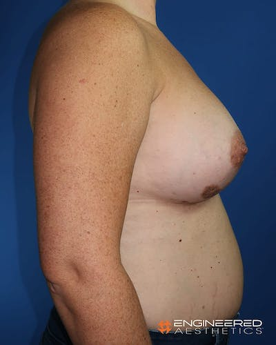 Breast Augmentation  Gallery - Patient 2772420 - Image 10