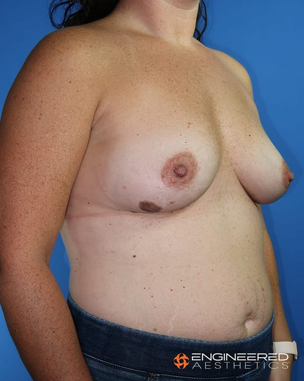 Breast Augmentation  Gallery - Patient 2772420 - Image 7