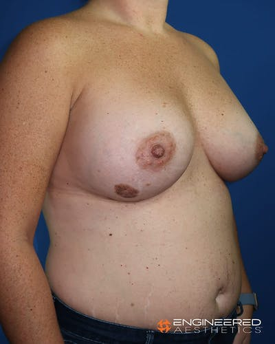 Breast Augmentation  Gallery - Patient 2772420 - Image 8