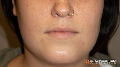 Fillers Gallery - Patient 2769965 - Image 1