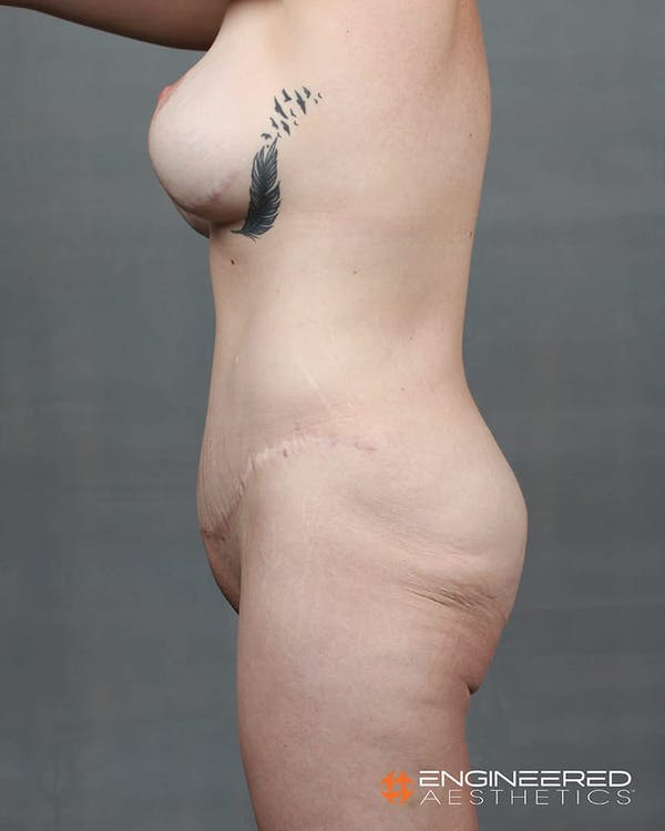 Gluteal Lift Gallery - Patient 2772491 - Image 1